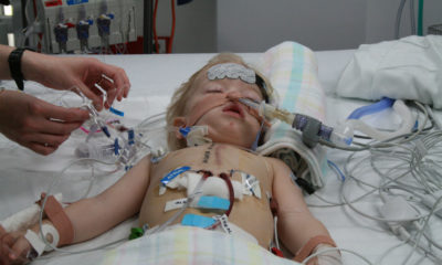 bypass surgery of heart