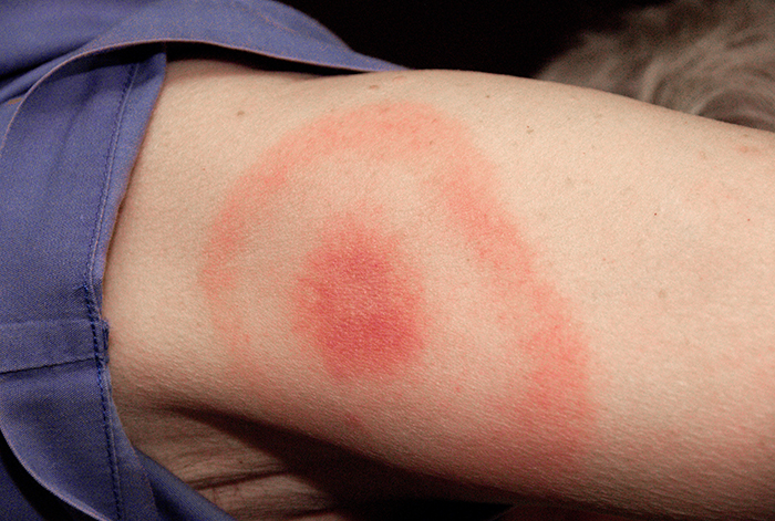 Treatment for Lyme Borreliosi Beckons