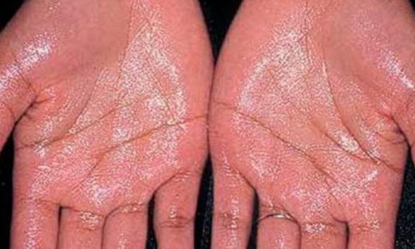 Treat Excessive Sweating Using Botox